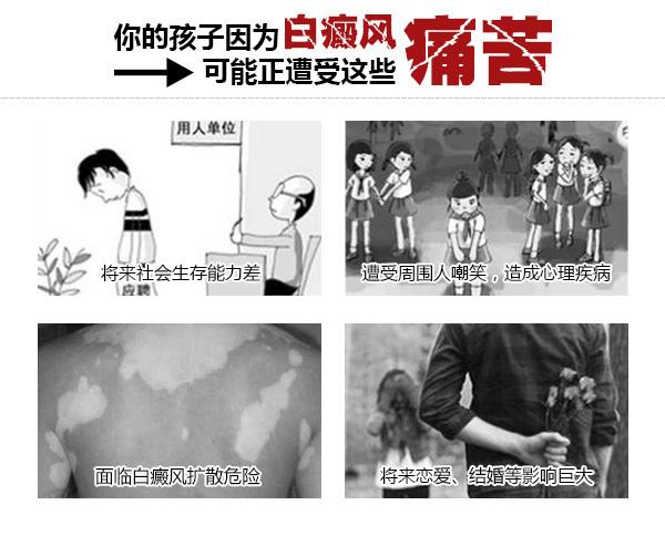【公益】全国白癜风医学教授公益亲诊第29期