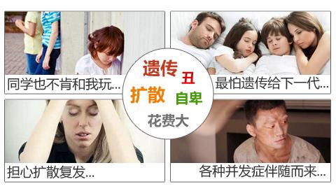 赣州中研白癜风对患者的心里危害有什么?