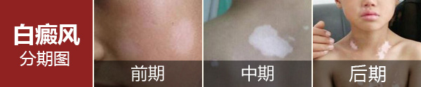 为什么要强调在早期治疗白斑?