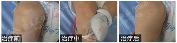 中研首例儿童白癜风308激光成功治愈