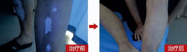 赣州中研腿部出现白斑会是白癜风吗?