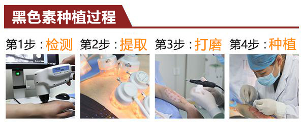 【公益】2.18-24中研黑色素种植术临床推广周启动