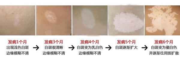 8.14-15日上海白癜风医学专家秦立模公益巡诊中研
