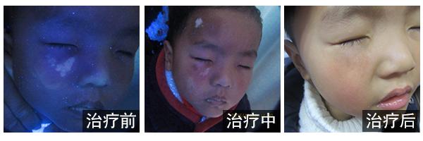 吉安白癜风儿童患上白癜风能治的好吗?