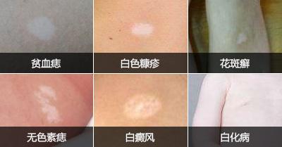 【解惑】白斑危害你了解多少?