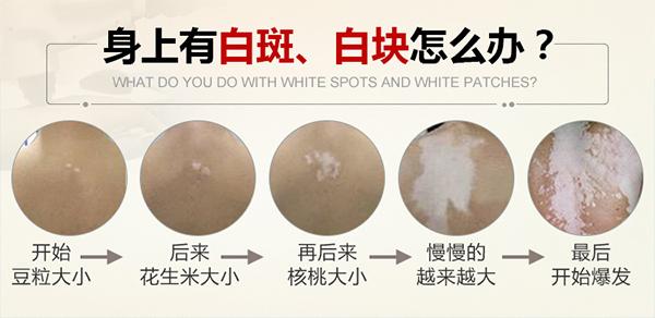 人们如何保养可以预防皮肤白癜风的发生。