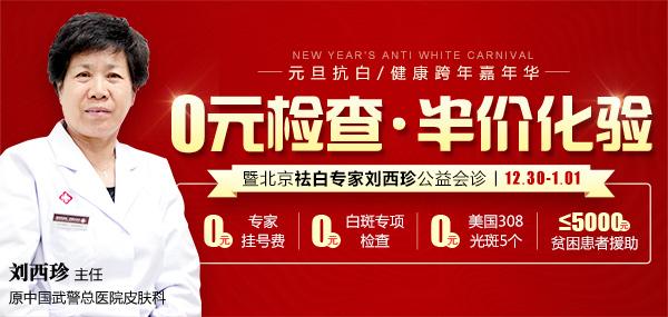 【公益】12.30-1.01赣州中研白癜风研究院0元检查
