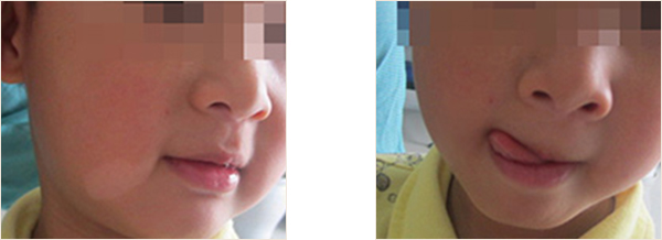 泰和宝宝头部瓷白色白斑是白癜风吗
