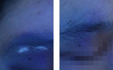 赣州白癜风的症状表现不仅仅是皮肤变白?