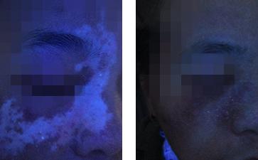 脸上有一圈白色斑点是什么?