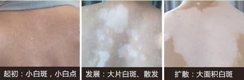 赣州白癜风做植皮手术后还会反复吗?