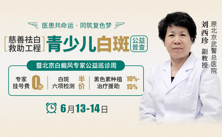 【公益】6.13-14日北京白癜风专家刘西珍巡诊中研