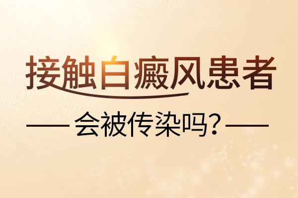 赣州白癜风给别人传染吗?