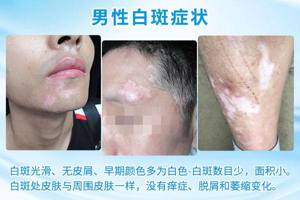 台州哪家医院治白癜风比较好 男性白癜风初期有什么症状