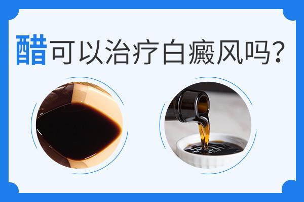 赣州白醋作为偏方能治疗白癜风吗?