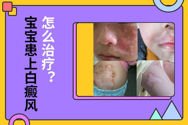怎样治疗小孩嘴唇上的白癜风?