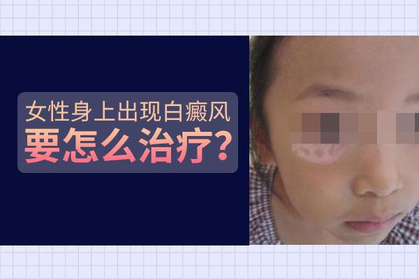 赣州为什么女性脸上的白癜风治不好?