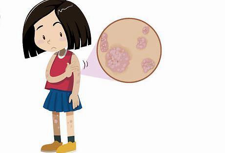 赣州儿童牛皮癣初期是什么症状