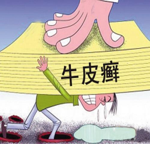 赣州中药治疗牛皮癣用药问题多注意