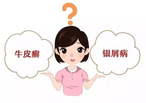 去九江医院治疗早期白癜风要多少钱?