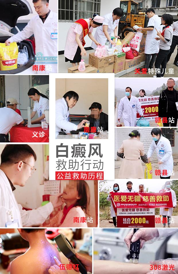 7.3-4暑期青少儿援助征集+北京白癜风教授公益巡诊中研