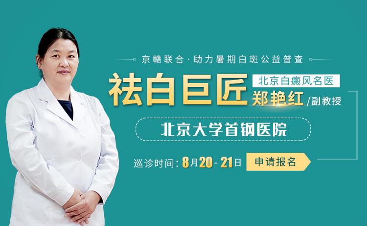 北京专家郑艳红助力暑期白癜风公益普查